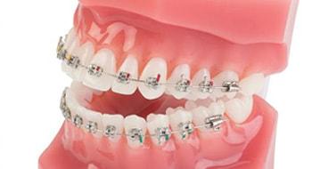 矯正歯科|神戸市東灘区住吉の米田歯科