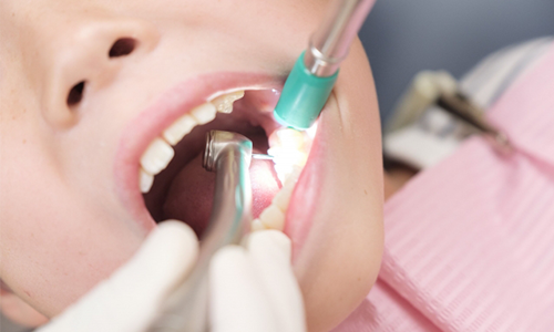 口腔外科|神戸市東灘区住吉の米田歯科